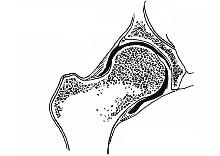 Dibujo para colorear Articulación coxofemoral - Img 13218